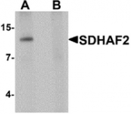 AP55591PU-N - PGL2 / SDHAF2