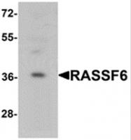 AP55594PU-N - RASSF6