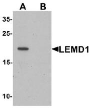 AP55597PU-N - LEMD1