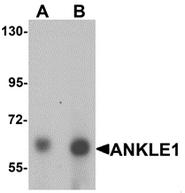 AP55598PU-N - ANKRD41 / ANKLE1