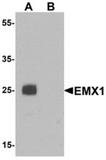 AP55602CP-N - EMX1