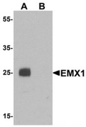 AP55602PU-N - EMX1