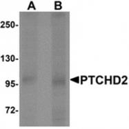 AP55606PU-N - PTCHD2