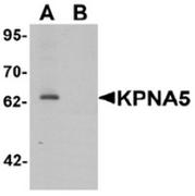 AP55609CP-N - KPNA5 / Importin alpha-6