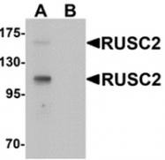 AP55611PU-N - RUSC2