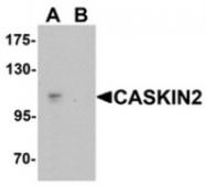 AP55612CP-N - Caskin-2