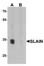 AP55614PU-N - SLAIN1