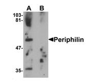 AP55616PU-N - Periphilin 1