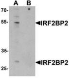 AP55617CP-N - IRF2BP2