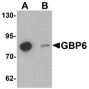 AP55618CP-N - GTP-binding protein 6 / GBP6