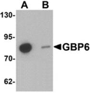 AP55618PU-N - GTP-binding protein 6 / GBP6