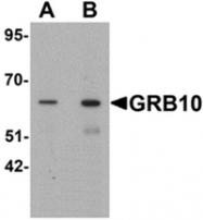 AP55623PU-N - GRB10 / GRBIR