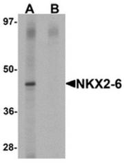 AP55628CP-N - NKX2-6