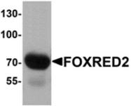 AP55633PU-N - FOXRED2