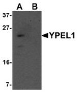 AP55635CP-N - YPEL1