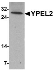 AP55636PU-N - YPEL2