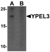 AP55637CP-N - YPEL3