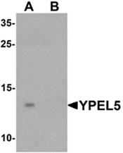 AP55638CP-N - YPEL5