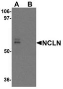 AP55643CP-N - Nicalin