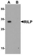 AP55644CP-N - RILP