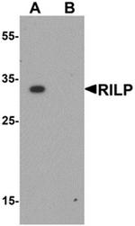 AP55644PU-N - RILP