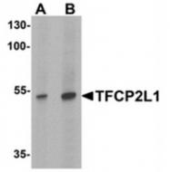 AP55648PU-N - TFCP2L1