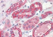 AP55683SU-N - Thymidylate synthase (TS)