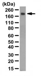 AP55974PU-N - Thrombospondin-2 (THBS2)