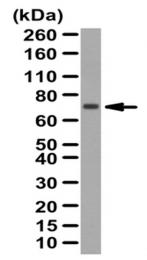 AP56005PU-N - Angiopoietin-5