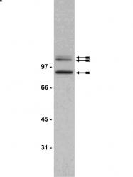 AP56013PU-N - Gamma-adducin (ADD3)