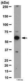 AP56039PU-N - Tricellulin