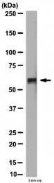 AP56067PU-N - MMP-14 / MT1-MMP