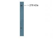 AP56069PU-N - Filamin-B