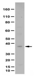 AP56077PU-N - LPAR5 / GPR92 / GPR93