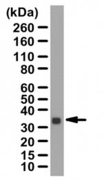 AP56086PU-N - Calponin-1