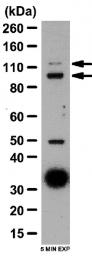AP56100PU-N - Autotaxin / ENPP2