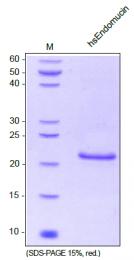 AR31181PU-N - Endomucin
