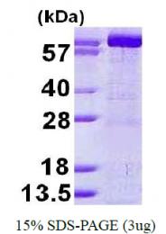 AR50228PU-N - GMP synthetase / GMPS