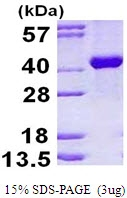 AR50229PU-N - Aldolase B / ALDOB