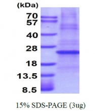 AR51115PU-N - Erythropoietin / EPO