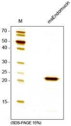 AR60010PU-N - Endomucin