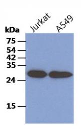 AM50094PU-N - CKAP1 / TBCB