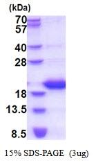 AR51636PU-N - Lipocalin-1