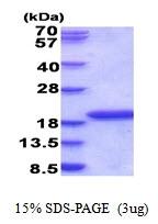AR51639PU-N - IL1F5 / IL1L1