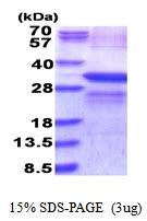 AR51651PU-N - Lysyl oxidase