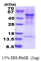 AR51655PU-N - ACTR3