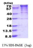 AR51657PU-N - EEF-2 kinase