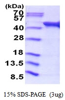 AR51664PU-N - Acetate kinase