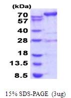 AR51695PU-N - AMP deaminase 2 / AMPD2