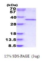 AR51697PU-N - CDK1